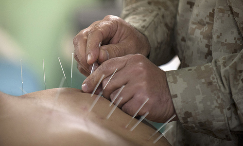 The Benefits of Acupuncture Therapy for Athletes